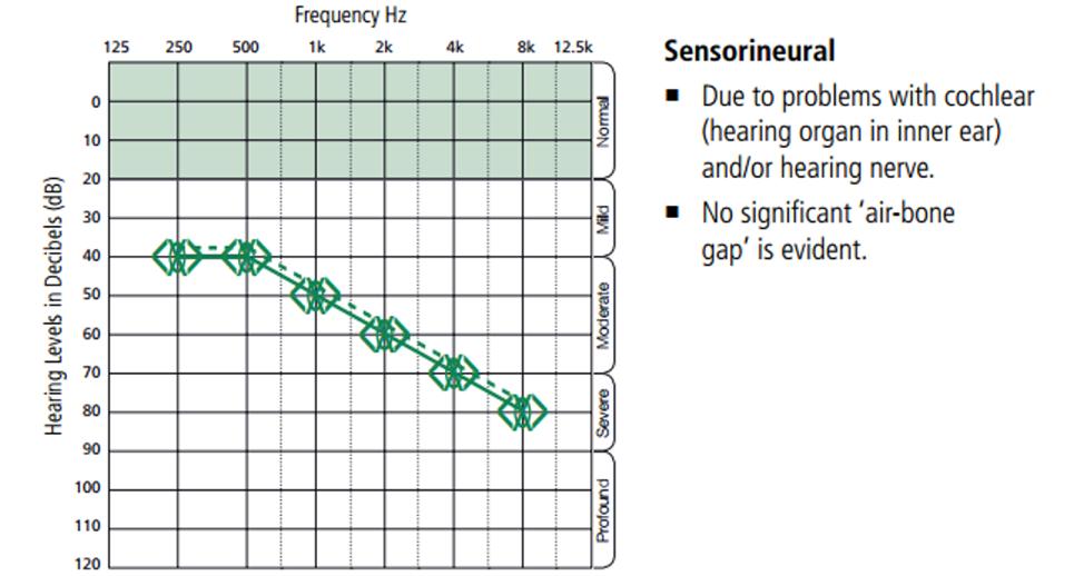 sensorineural