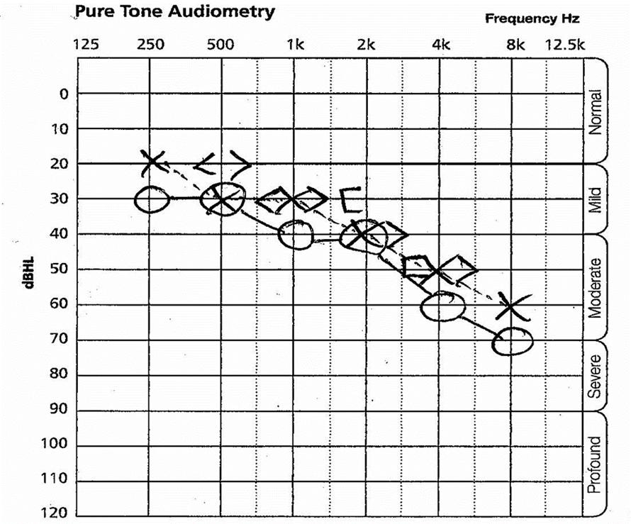 pure tone audiometry_1