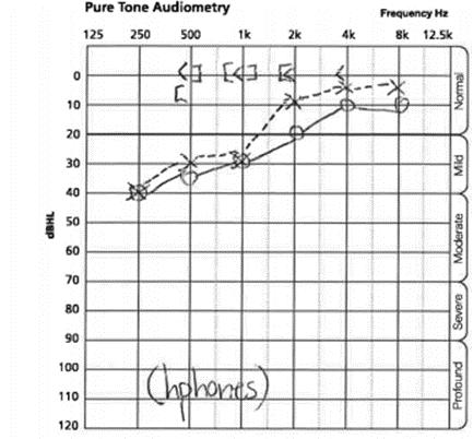 pure tone audiometry_2