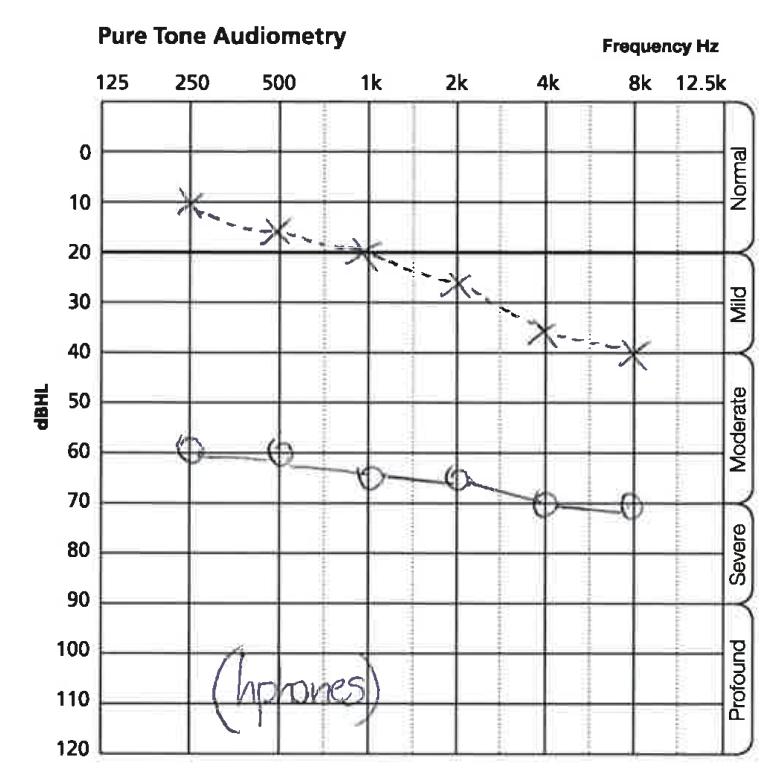 pure tone audiometry_3