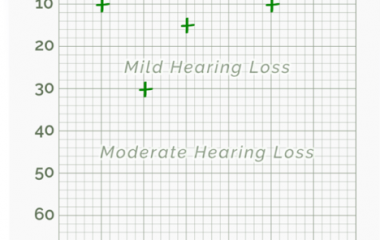 free online hearing test results