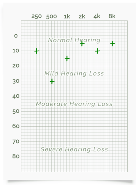 I have a hearing loss, now what? a step-by-step guide to looking after your hearing health