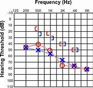 hearing threshold