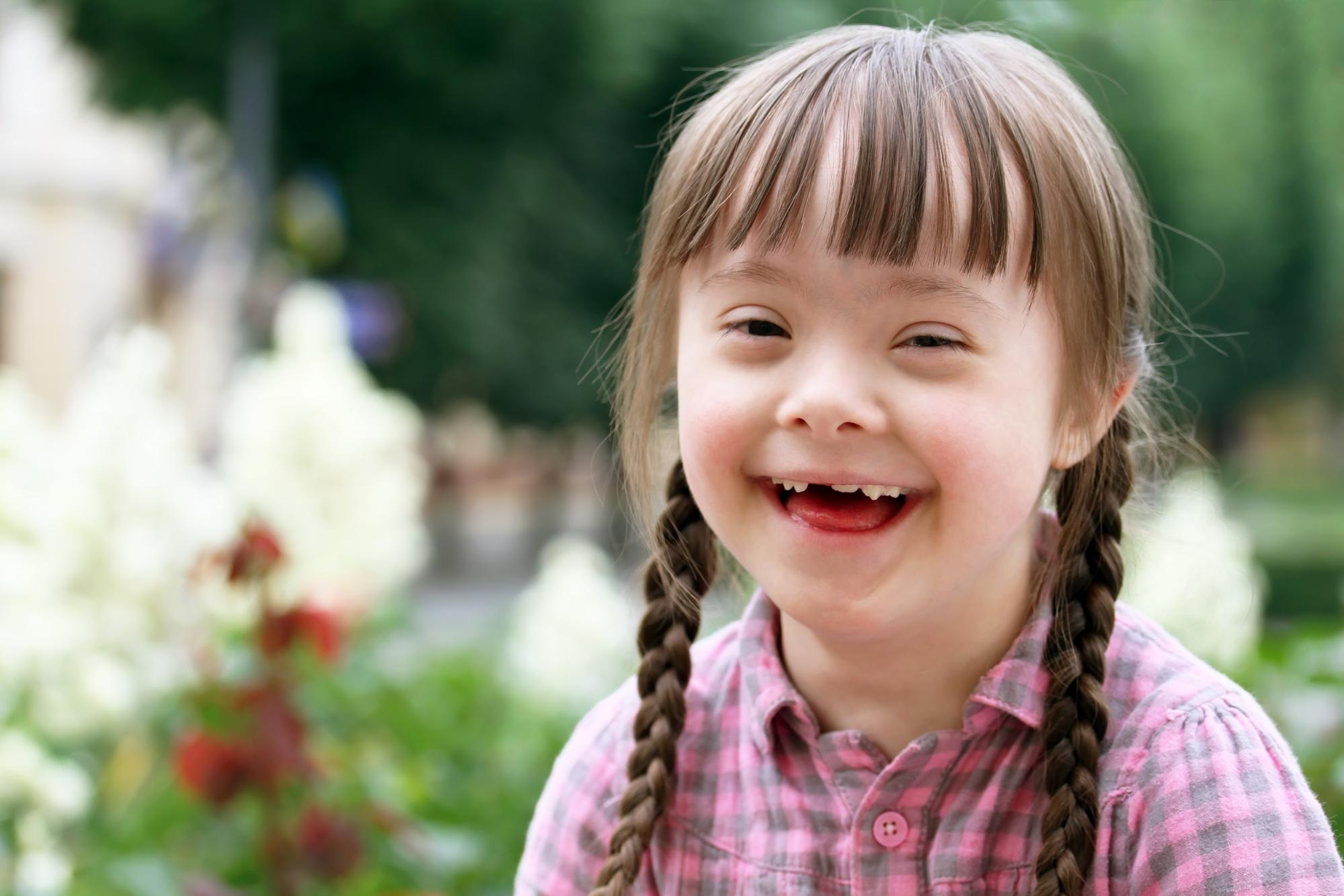 Hearing loss in children with down syndrome